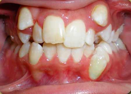 دندان اضافی و مشکلات آن