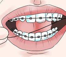 استفاده از نخ دندان و دهانشویه در خلال درمان ارتودنسی