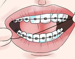 استفاده از نخ دندان و دهانشویه
