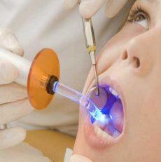 ماده پر کردن دندان با ماندگاری دو برابر