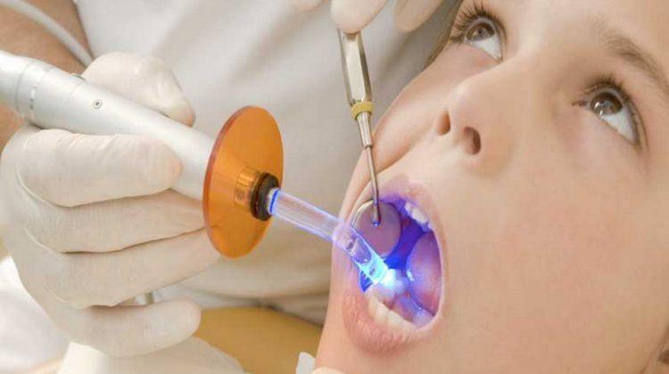 ماده پر کردن دندان