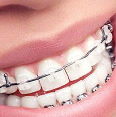 حرکت دندان عصب کشی شده در ارتودنسی