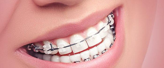 دندان عصب کشی شده