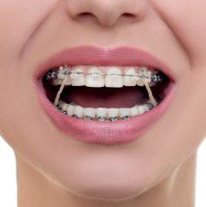 ردیف کردن دندان بدون استفاده از ارتودنسی