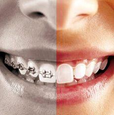 مرتب کردن دندان با ارتودنسی دیمون